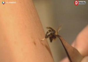 La terapia con abejas