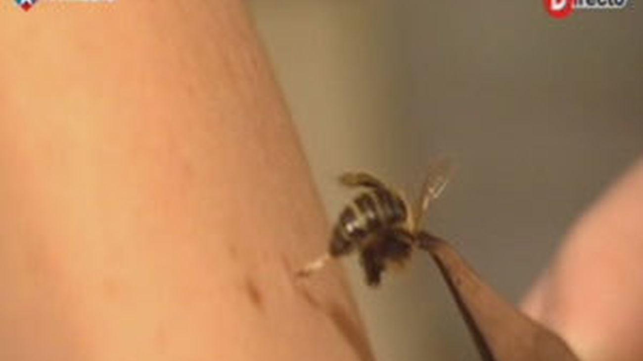 Acupuntura con abejas