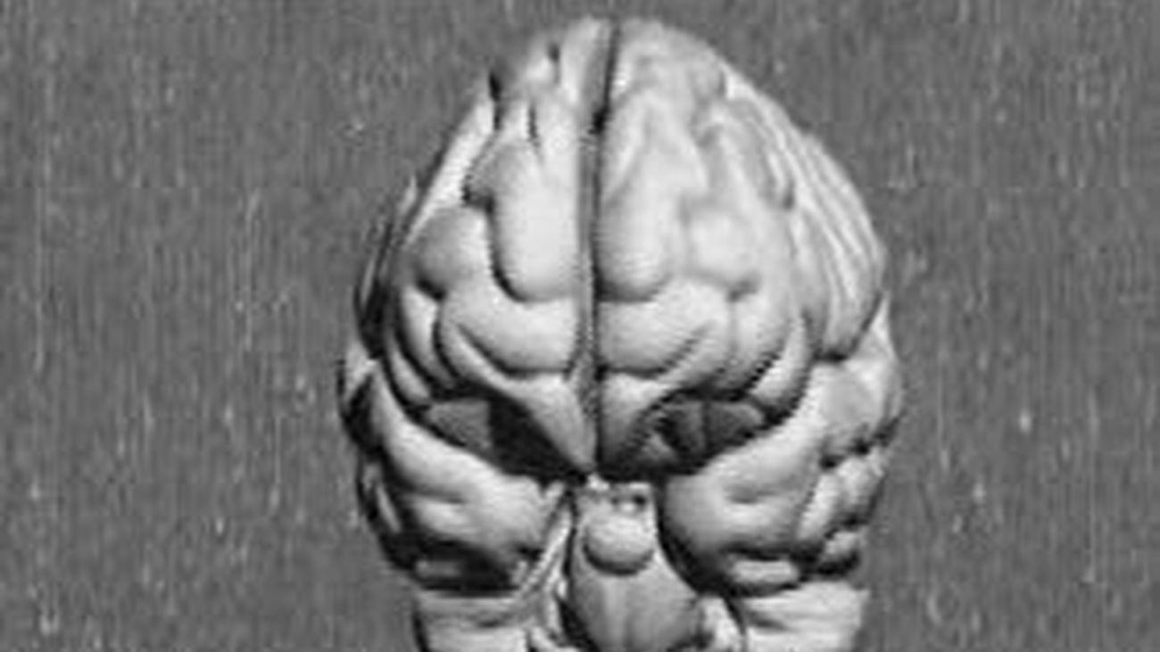 Un mapa en 3D del cerebro para trazar la ruta del Alzheimer