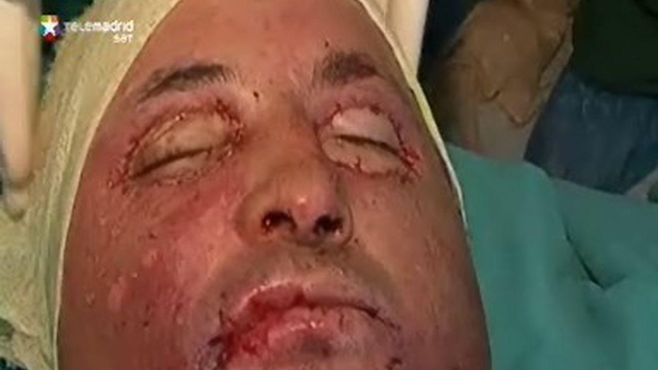 Trasplante integral de cara en Turquía