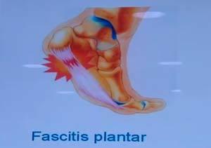 Lesiones en Acción: Fascitis plantar
