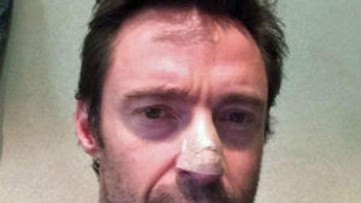 Hugh Jackman revela que padece cáncer de piel