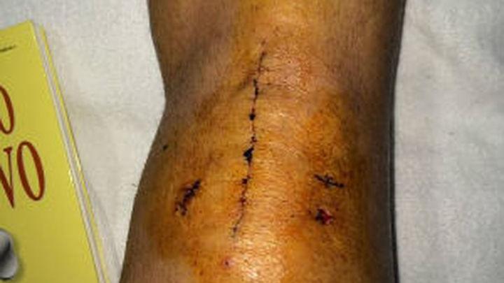 """Jesé muestra la rodilla operada: """"Vamos avanzando"""""""