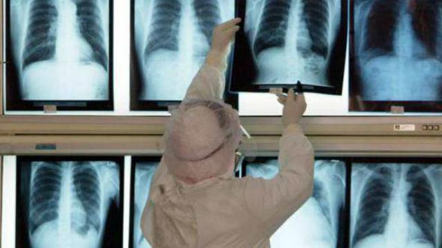 Expertos instan a vacunarse de neumonía, que causa más de 8.000 muertes al año