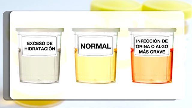 Una vacuna para la infección de orina
