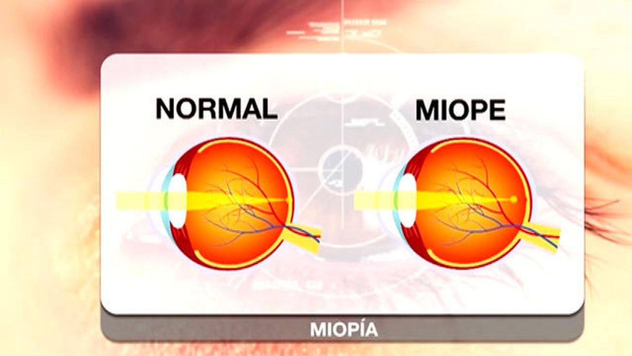Miopía: ¿Puede corregirse sin cirugía?