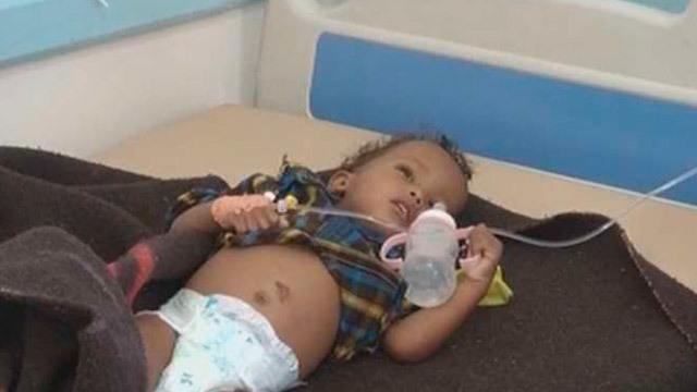 Cólera en Yemen