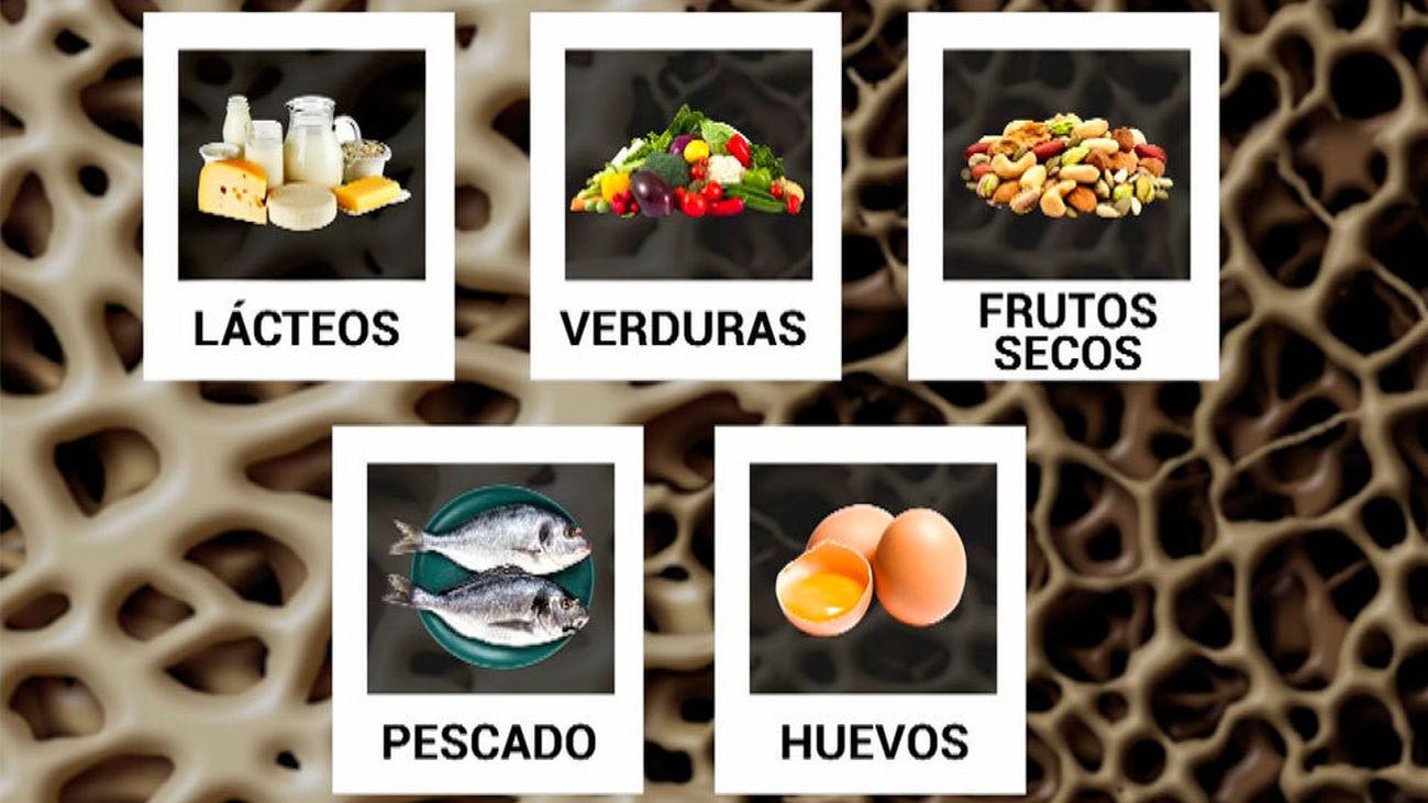 Alimentos contra la osteoporosis