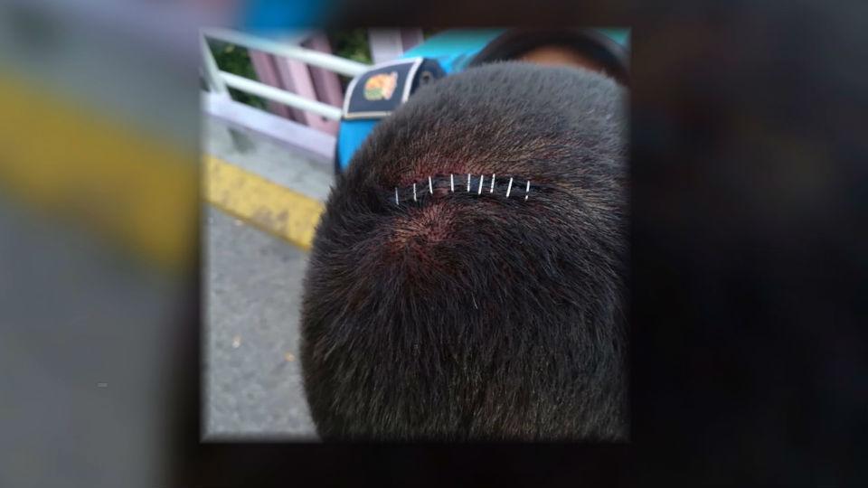 Brutal agresión a cuatro policías municipales de Getafe
