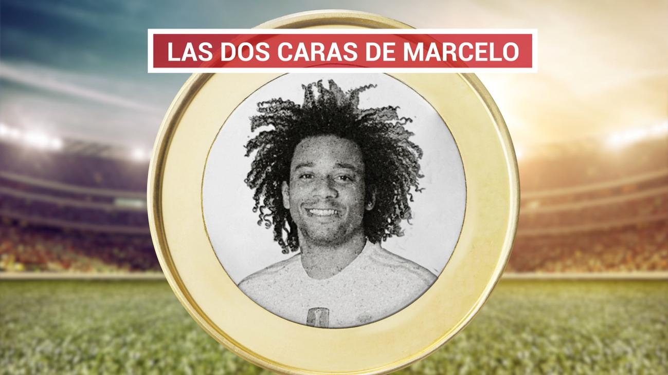 La cara oscura de Marcelo