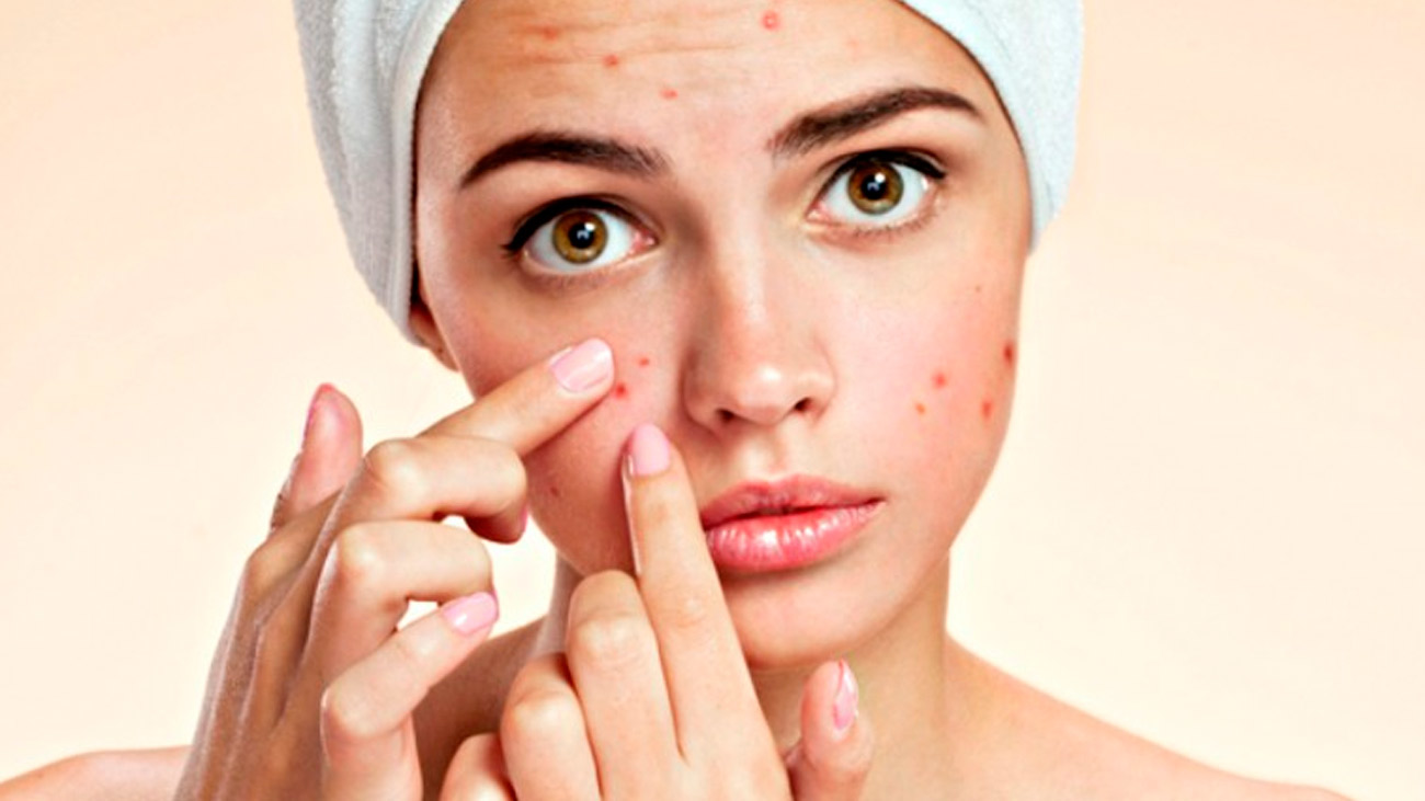 El acné no solo es un problema de adolescentes