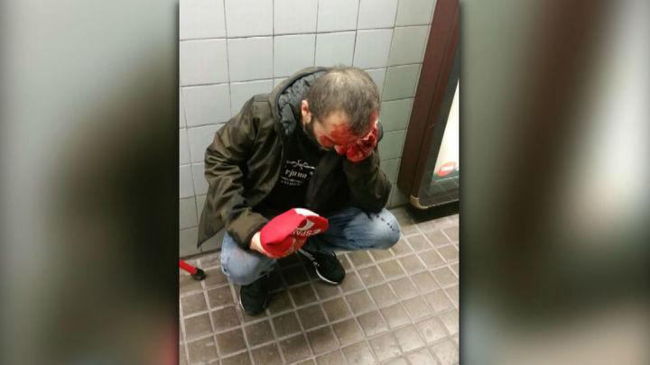 Herido un hombre tras un empujón en el metro cuando lucía una gorra de España