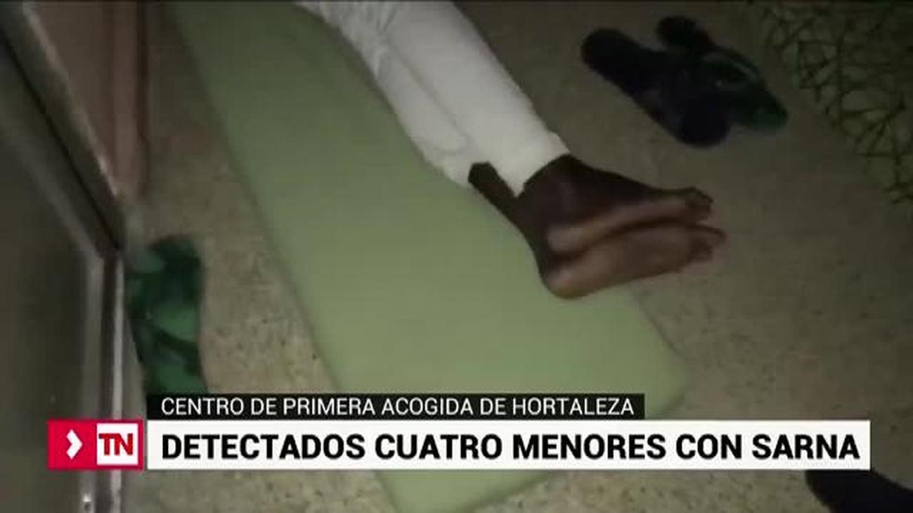 La sarna llega al Centro de Primera Acogida de Hortaleza