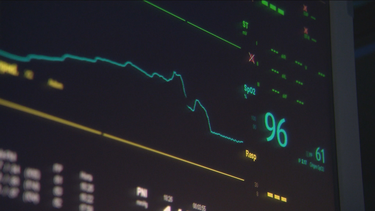 Operan a un hombre del corazón tras un error con los electrocardiogramas