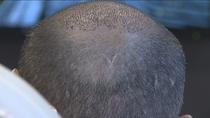 Los implantes de pelo, un negocio en auge en España