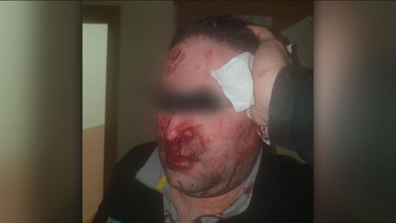 Un vigilante del centro de Hortaleza denuncia que fue agredido por menores