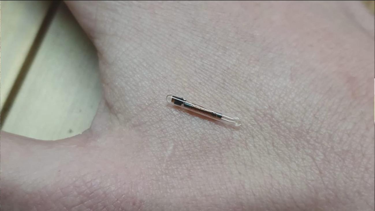 ¿Cómo es vivir con un chip instalado en tu propio cuerpo?