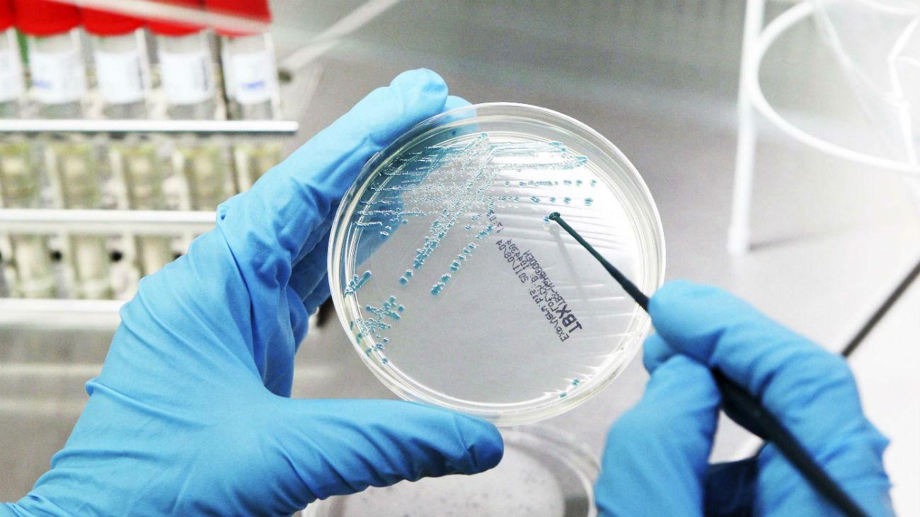 Una investigadora madrileña necesita fondos para su nuevo tratamiento contra el cáncer