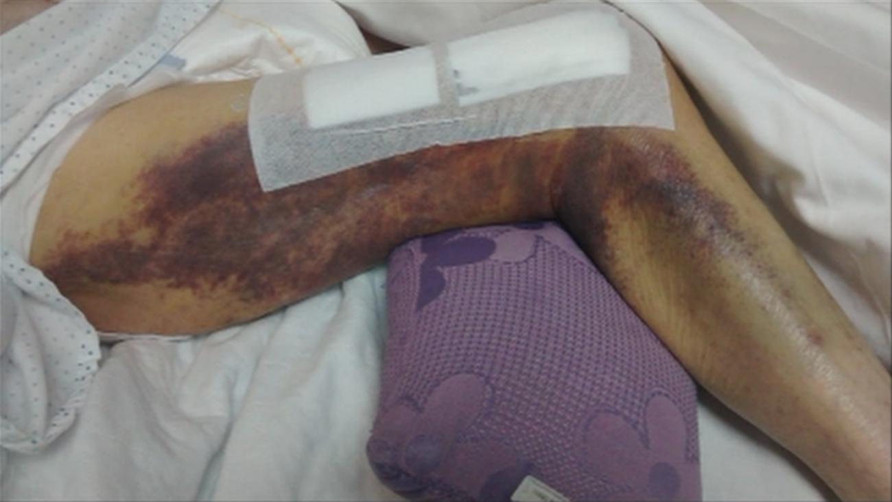 Una anciana pasa tres días con la pierna rota en una residencia de Colmenar Viejo