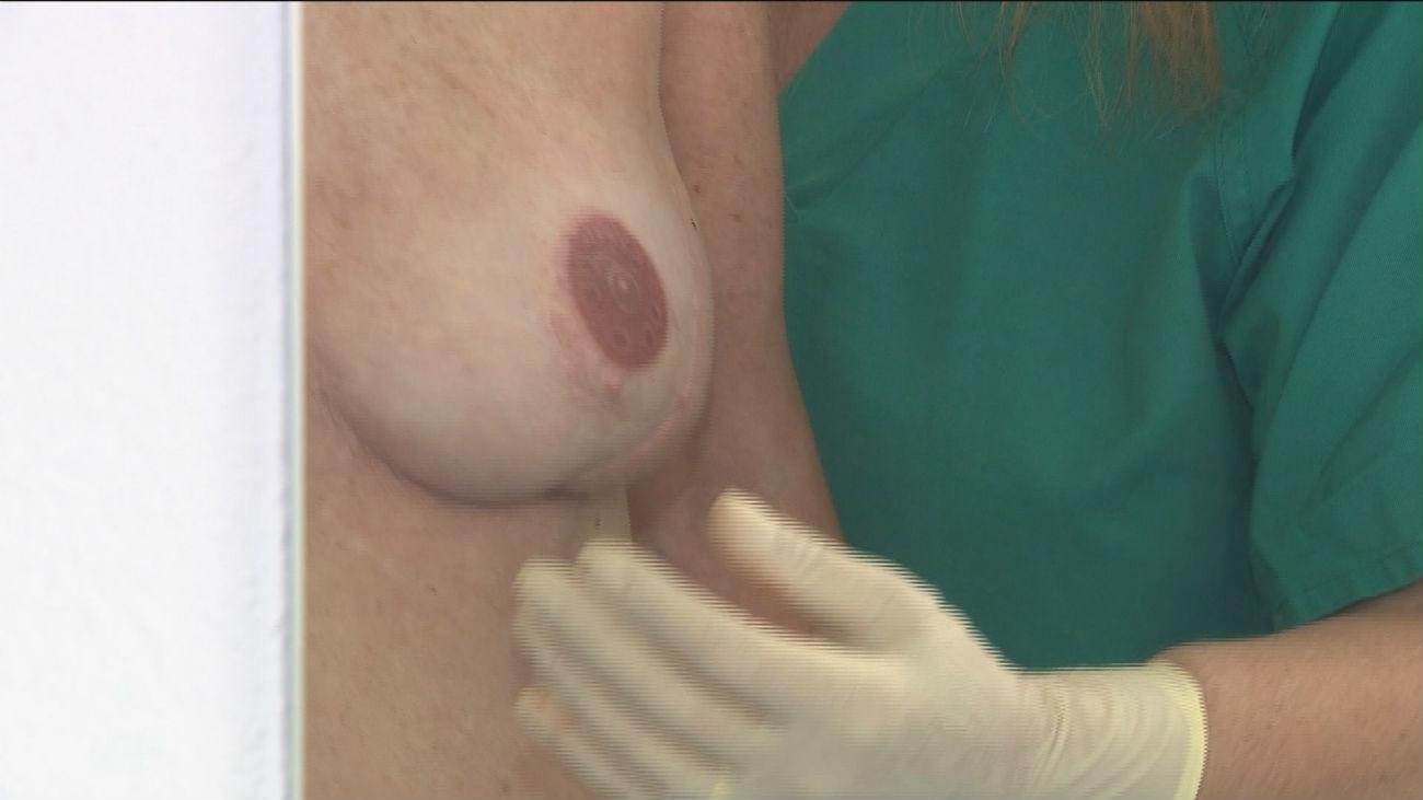 El Ramón y Cajal alberga la única unidad dedicada a la micropigmentación de mama