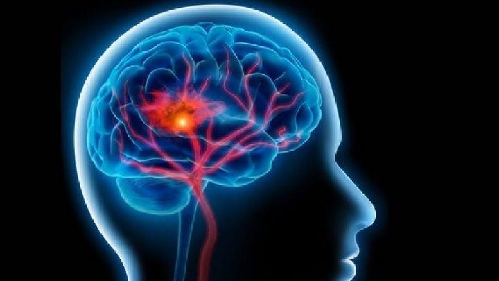 ¿Cómo debemos actuar ante un ictus cerebral?