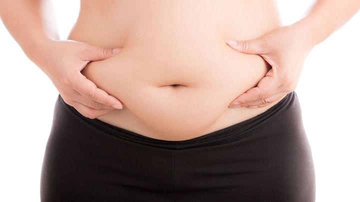 Obesidad, pandemia mundial del siglo XXI