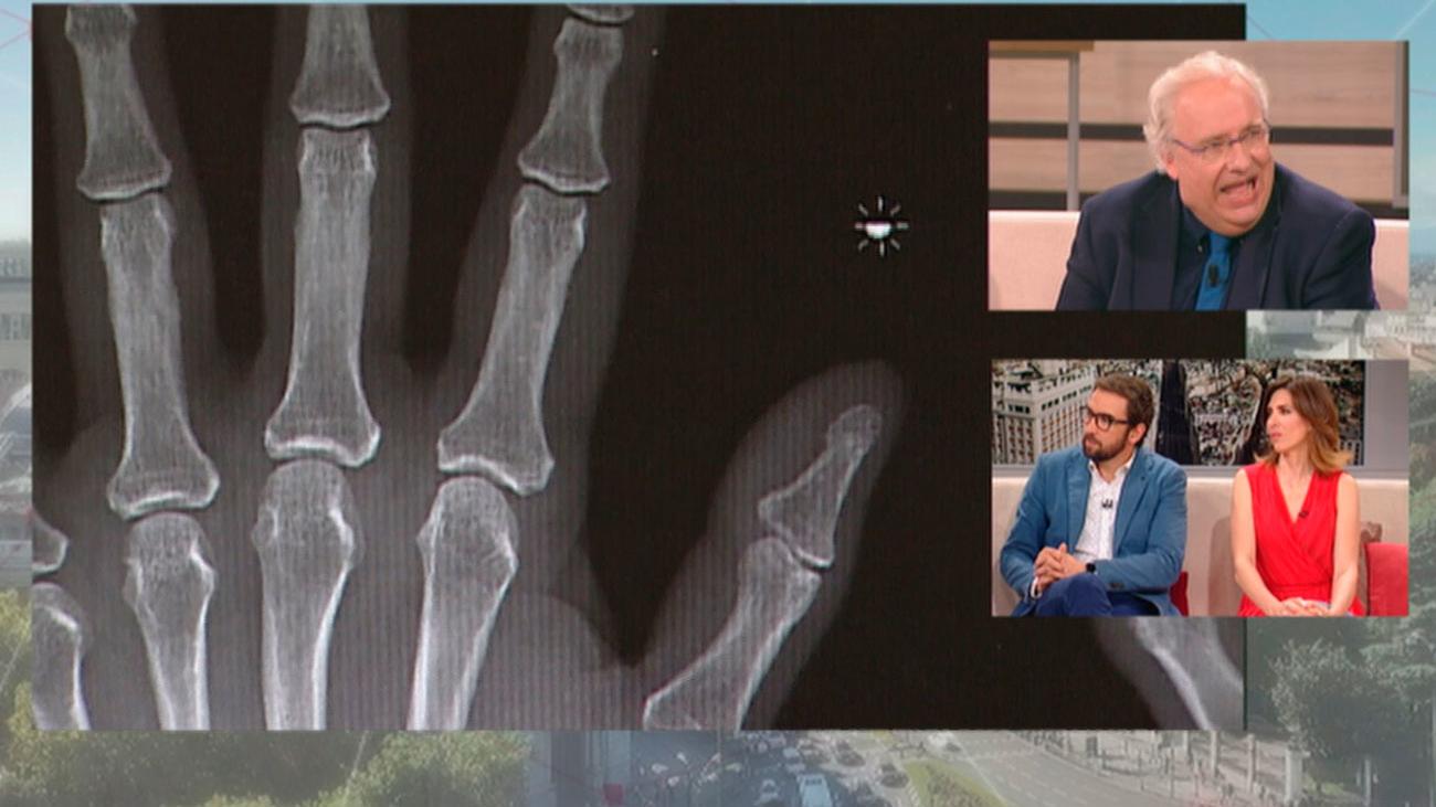Siete millones de personas en España padecen artrosis