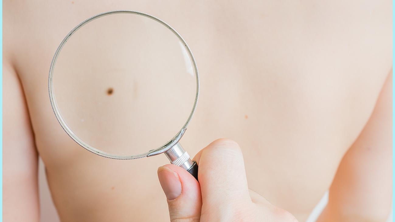 Los centros de salud de Madrid incorporan el dermatoscopio para detectar el melanoma