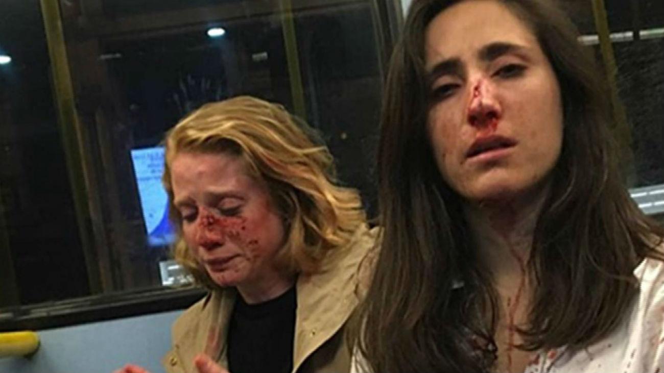 Agresión homófoba a dos lesbianas en Londres