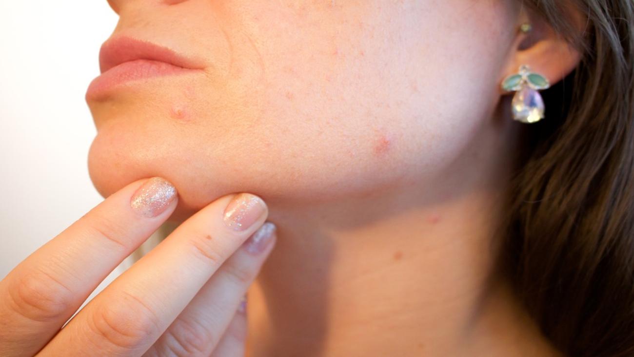 Cómo frenar el acné a los 30 años