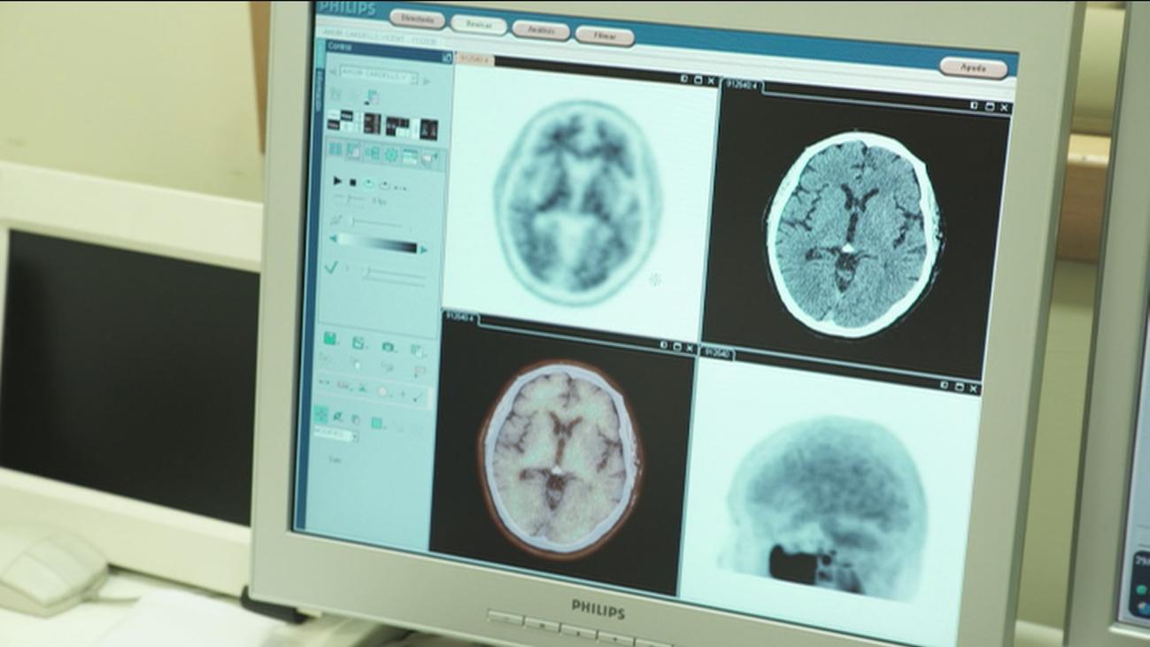 Buscan en Madrid voluntarios para un ensayo clínico contra el alzhéimer