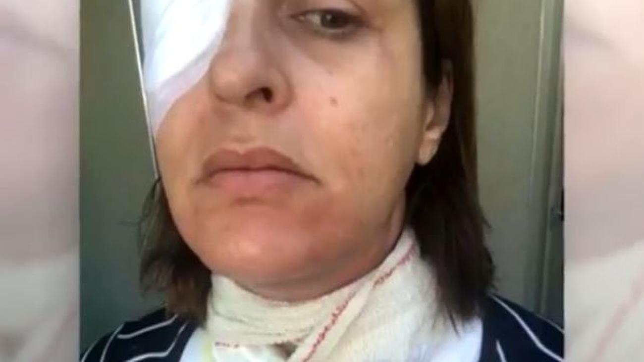 Dos mujeres denuncian graves quemaduras por la explosión de un robot de cocina
