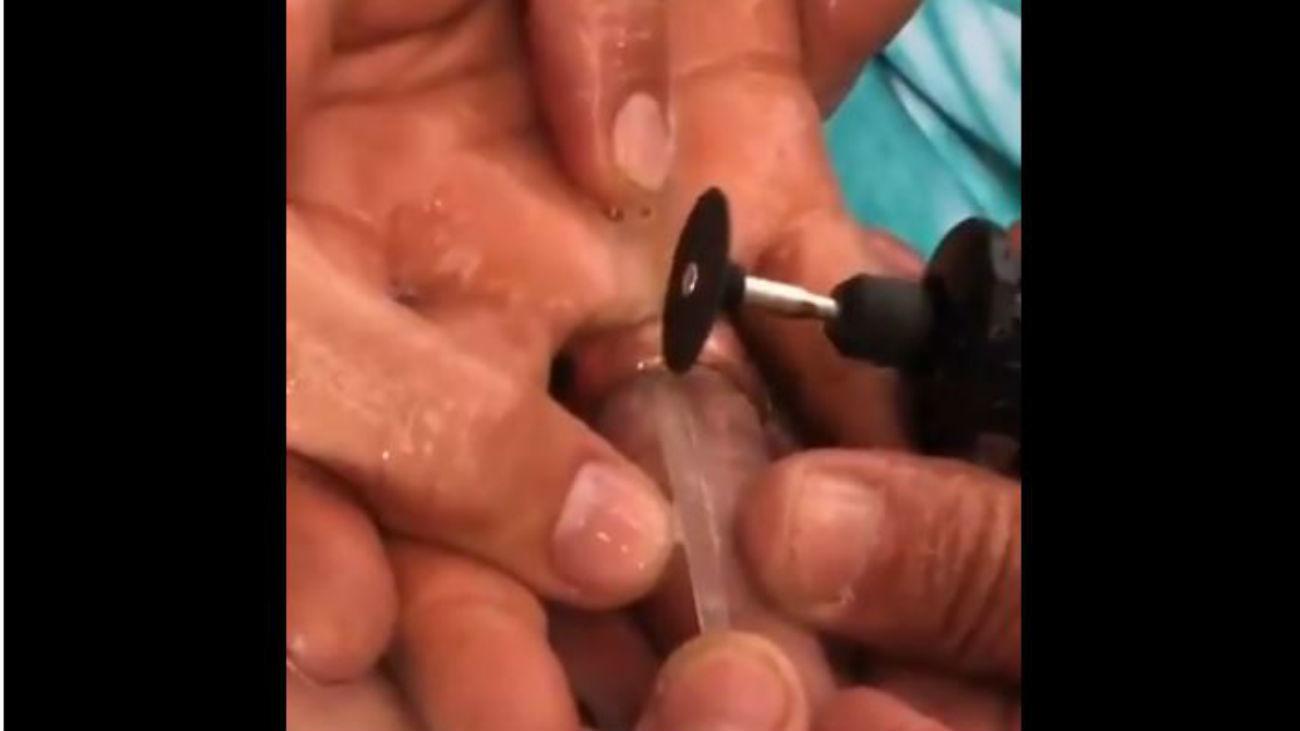 Los bomberos de Fuenlabrada liberan a dos mujeres de los anillos que 'estrangulaban' sus dedos