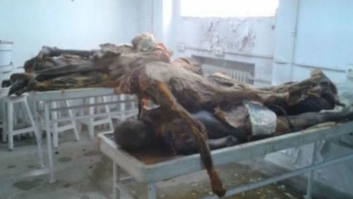 Procesado el exdirector de Anatomía de la Complutense por la acumulación de cadáveres