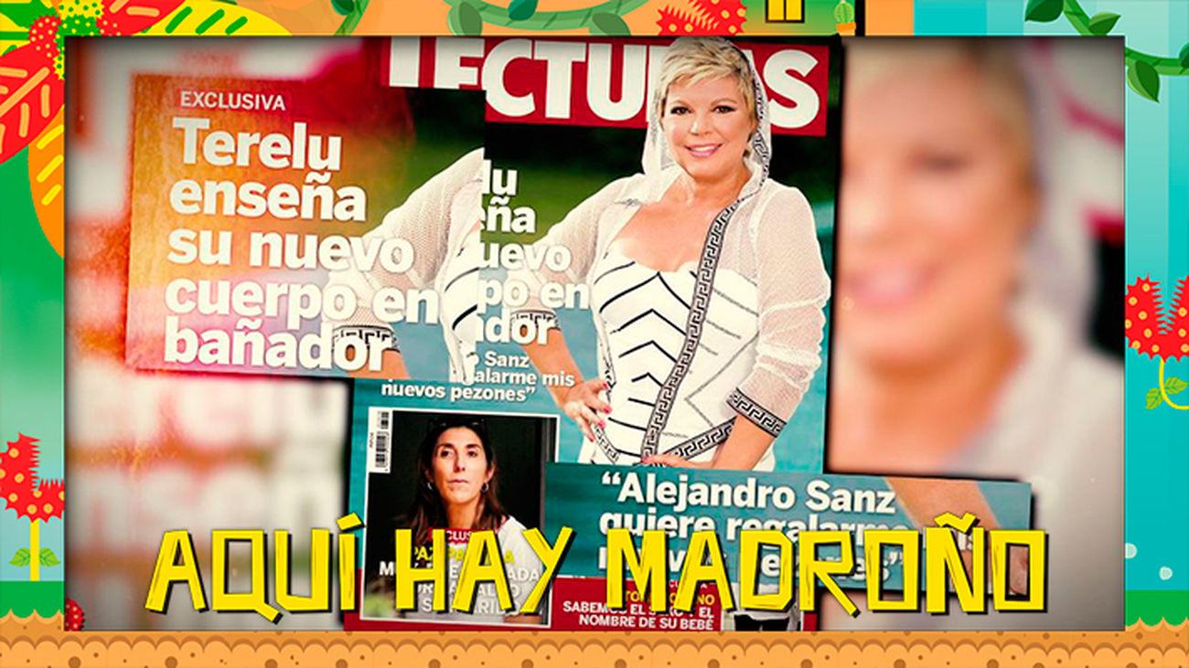 Terelu Campos cuenta las secuelas de sus intervenciones