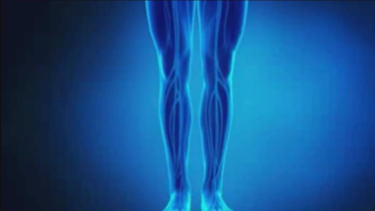 Consejos para evitar las piernas hinchadas
