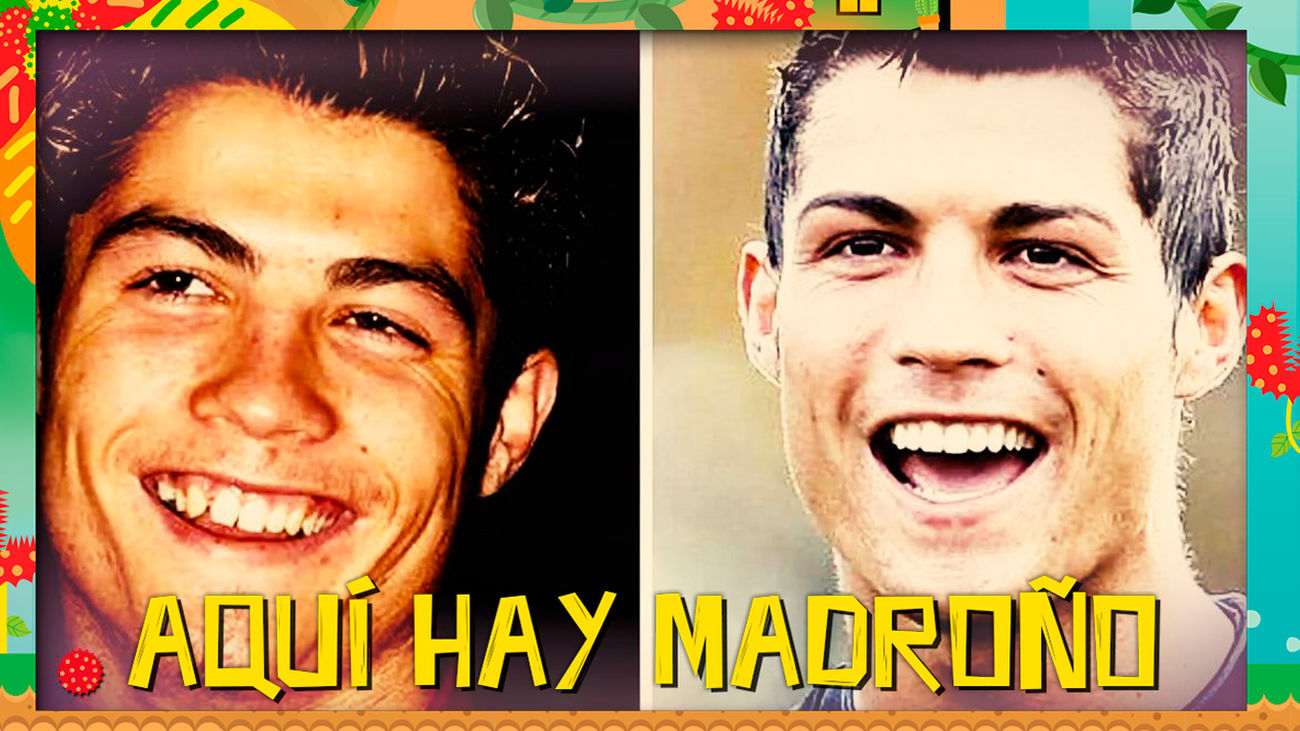 Cristiano Ronaldo, un apasionado de la cirugía estética