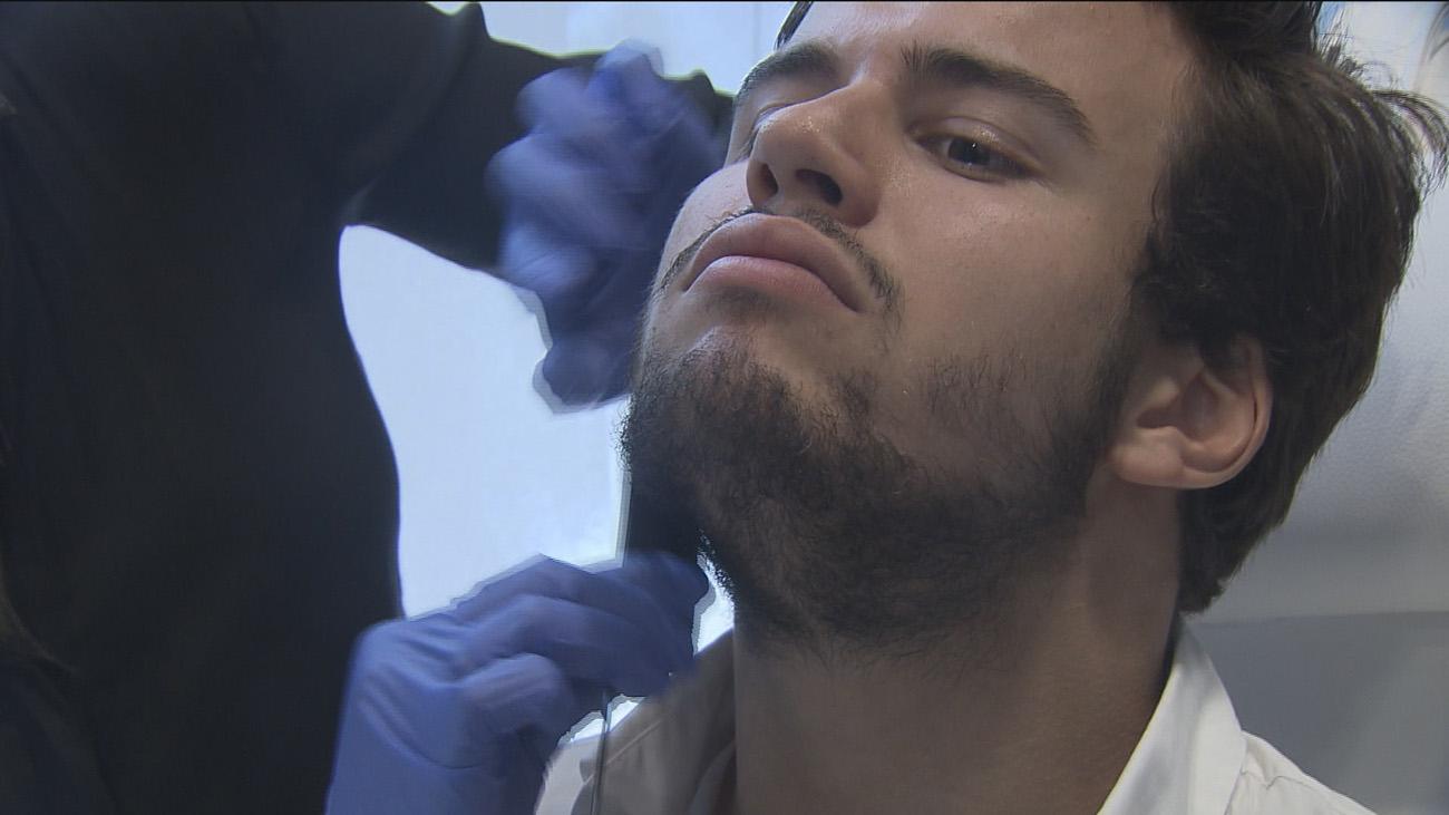 Injertos para repoblar la barba, la última tendencia