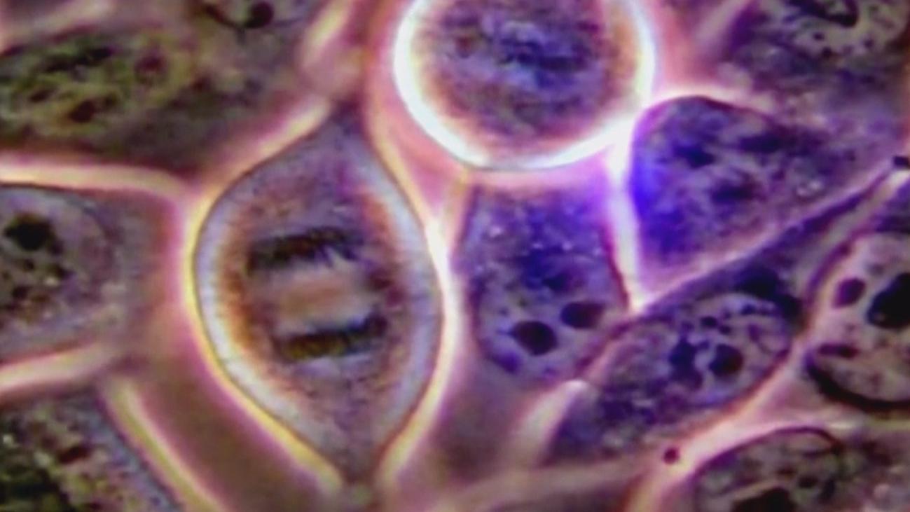 Secuencian el genoma completo de los tumores metastásicos