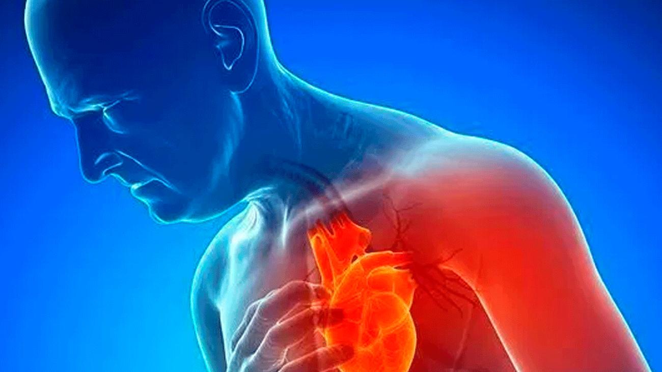 Síntomas de un infarto en mujeres y hombres