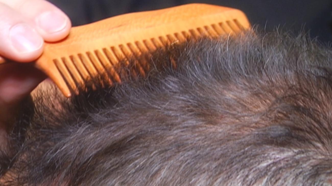 Los injertos de pelo, un negocio en auge en Madrid