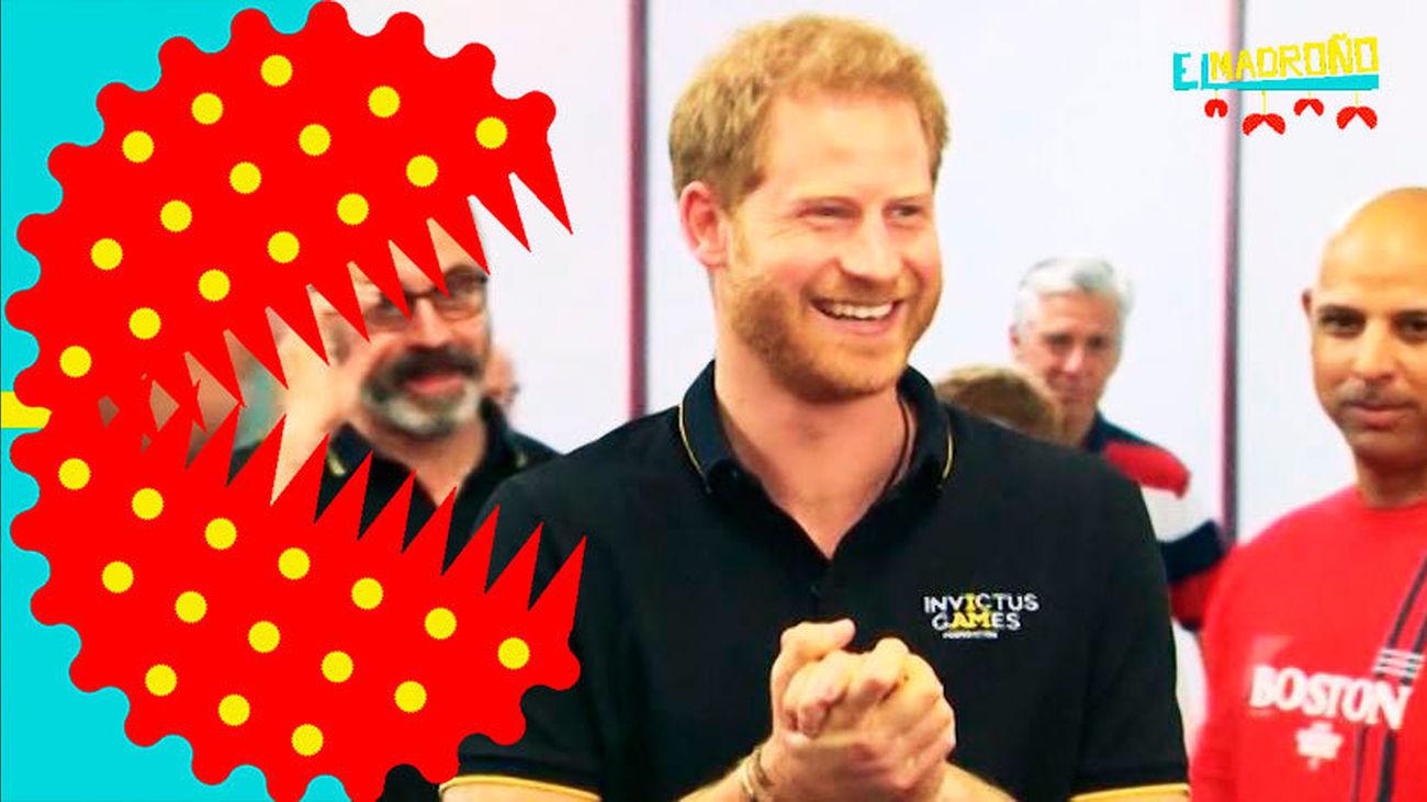 Los retoques estéticos del Príncipe Harry