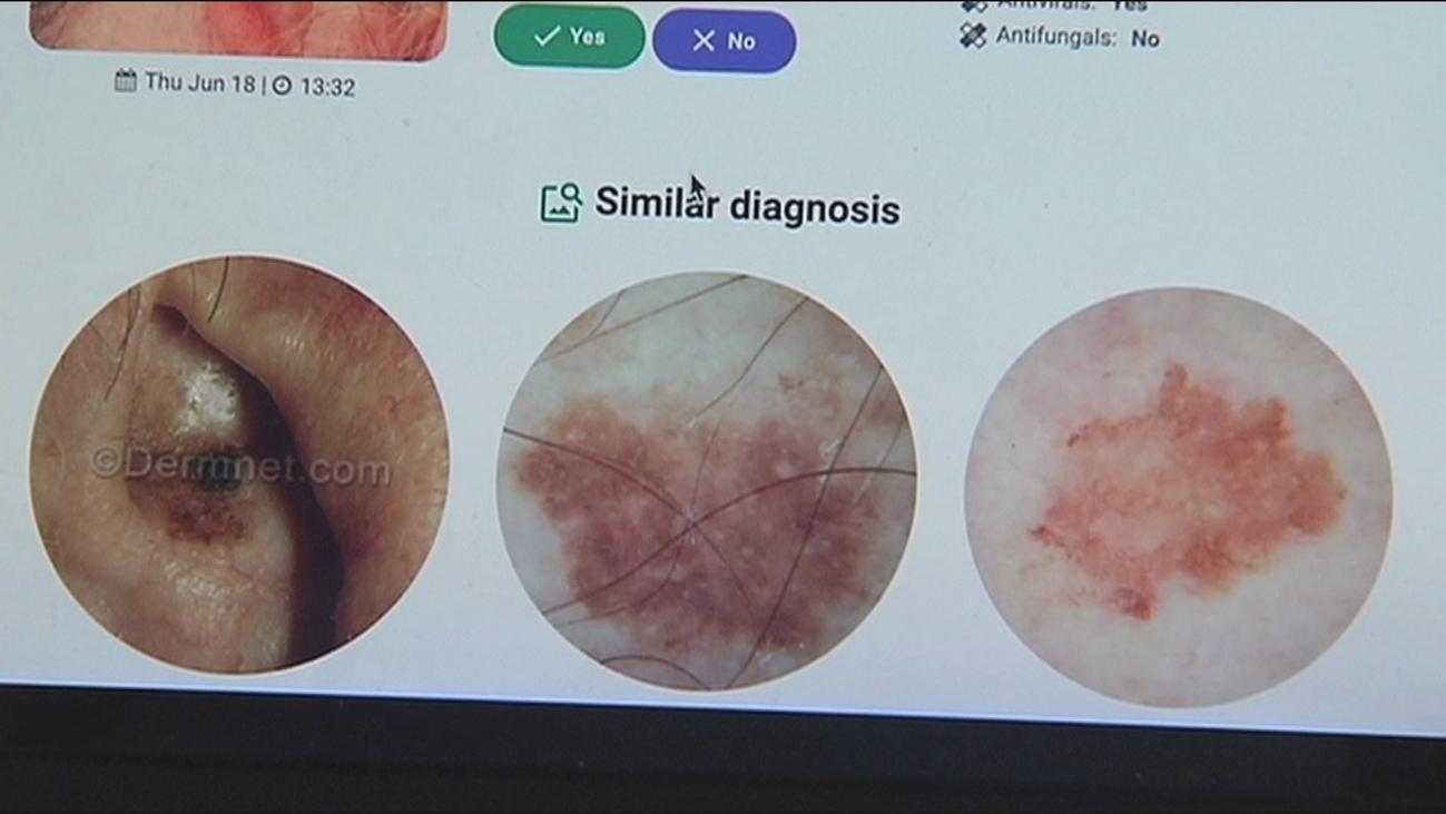 Una aplicación de móvil para detectar un melanoma a partir de una fotografía