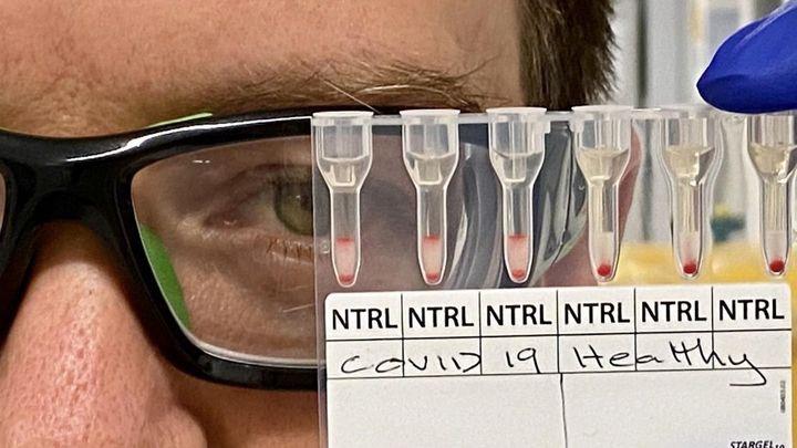 Madrid notifica tres nuevos brotes en la región con 23 casos de coronavirus
