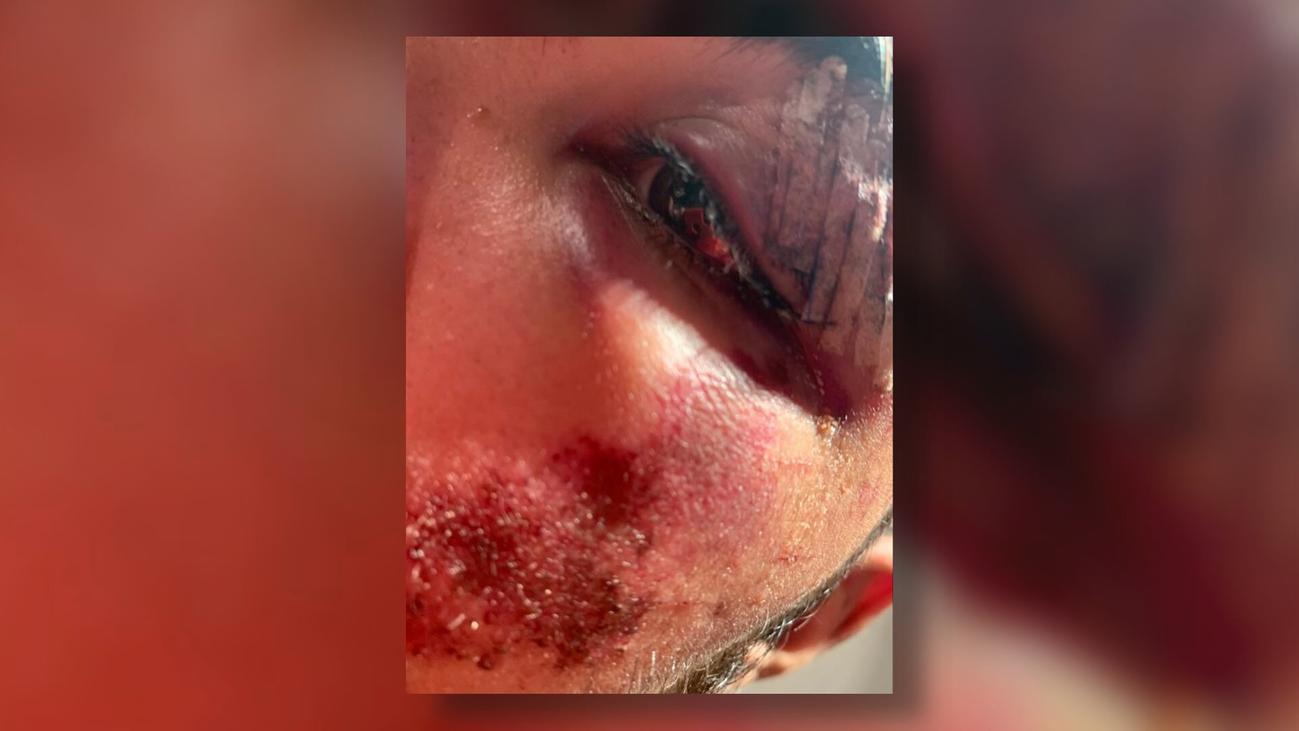 Brutal agresión a un joven en Hortaleza por negarse a dar un cigarrillo a tres menores