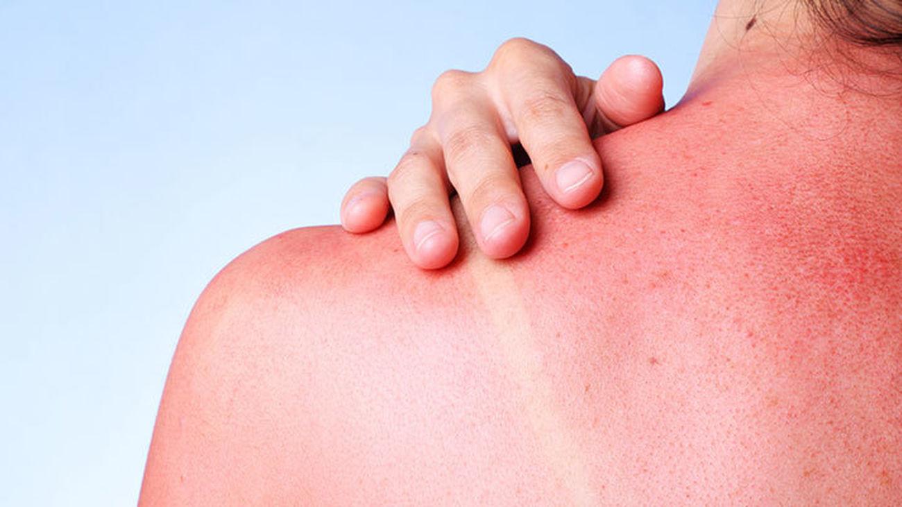 Enfermedades de la piel en verano