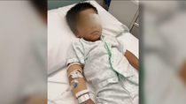Un niño de 3 años sufre graves lesiones en un ojo porque un compañero le lanzó gel hidroalcohólico
