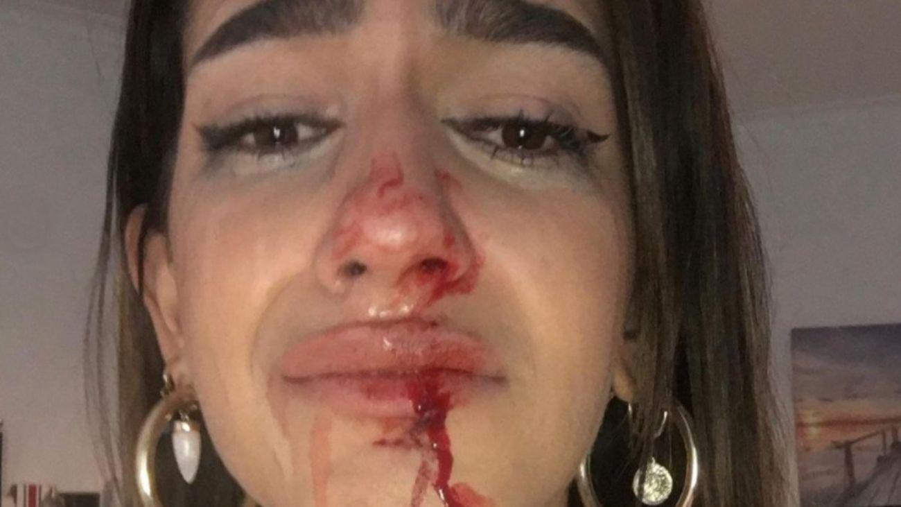 Los Mossos investigan la paliza a una joven transexual en Barcelona
