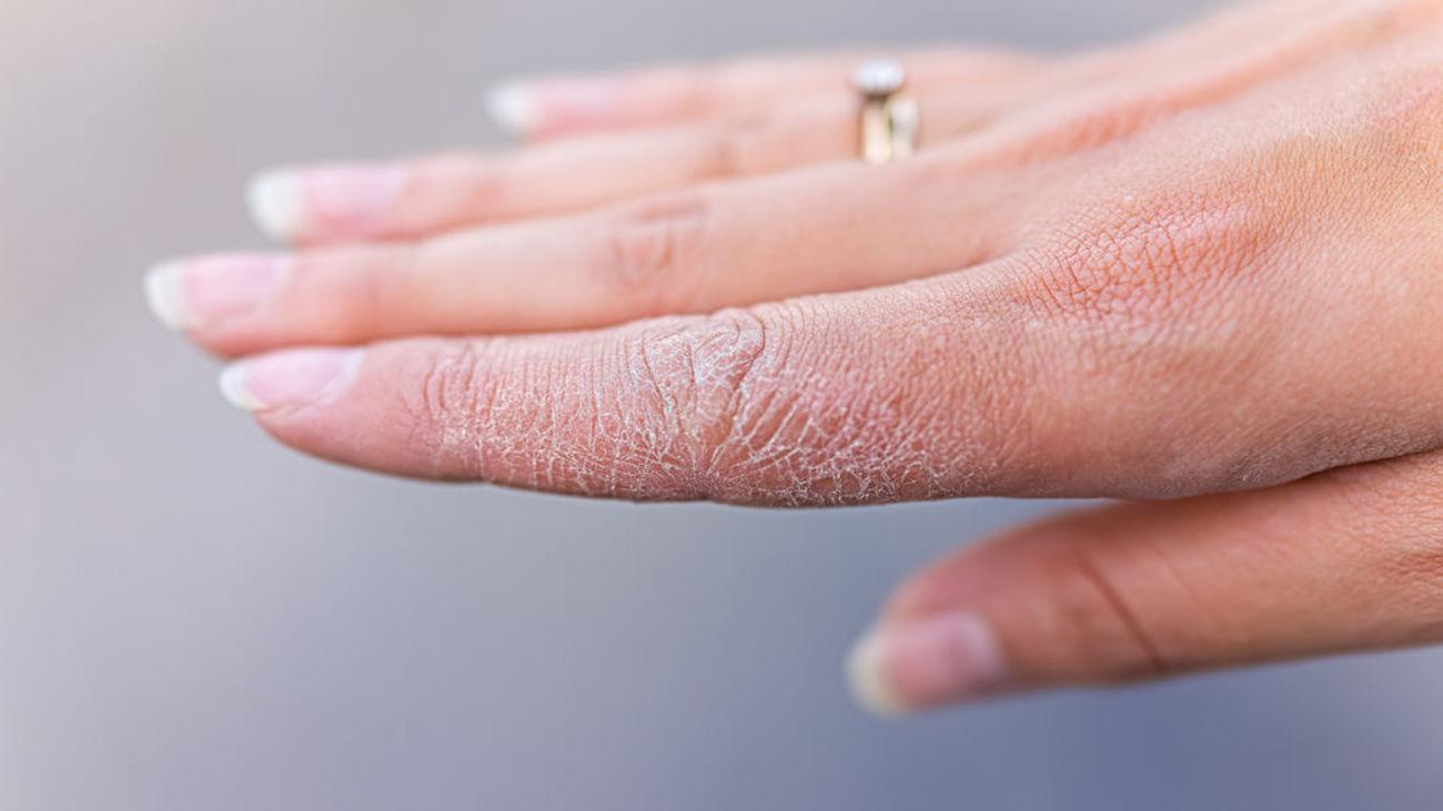 Urticarias, sabañones, grietas... alteraciones de la piel por frío extremo