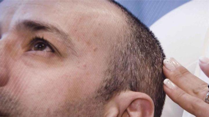 Ya no hace falta irse a Turquía: en Madrid ya encontramos clínicas 'low cost' de injerto de pelo